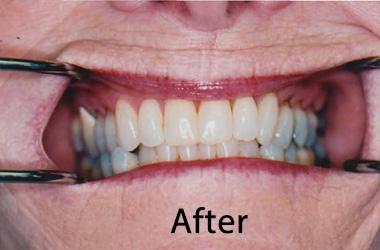 Hunt Valley Teeth Whitening, Teeth Whitening Cockeysville