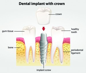 Implant Crowns