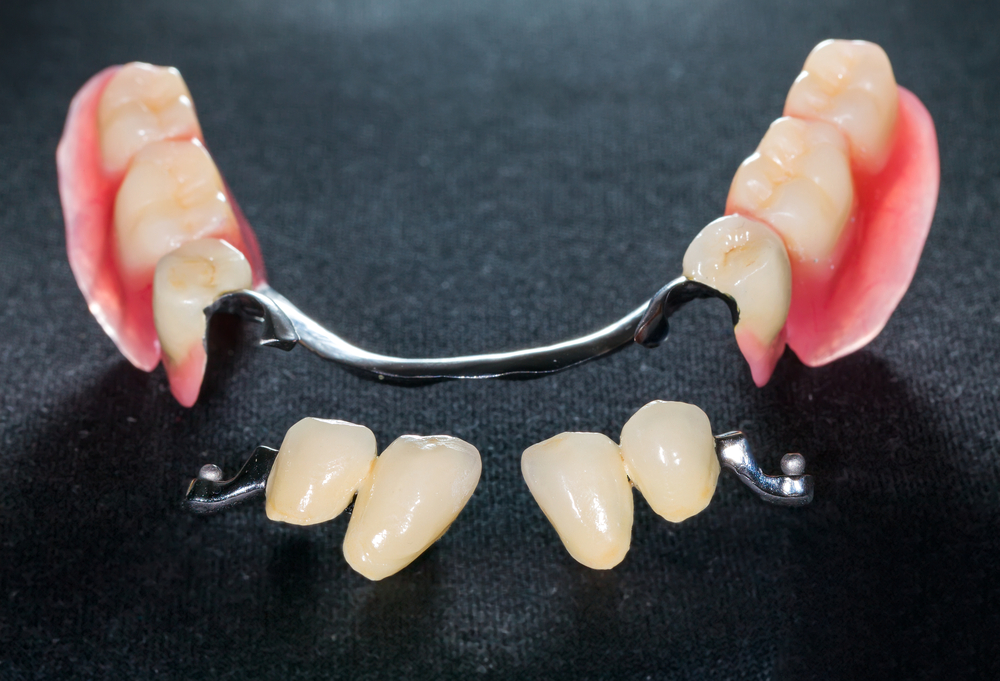 precision partial denture