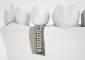 Hunt Valley Dental Implants, Dental Implants Lutherville