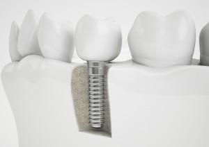 Hunt Valley Dental Implants, Dental Implants Lutherville