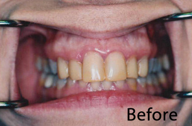 Hunt Valley Veneers, Cockeysville Dental Veneers