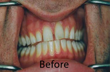 Hunt Valley Veneers, Cockeysville Dental Veneers