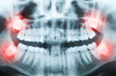 Wisdom Teeth Cockeysville, Cockeysville Wisdom Tooth Extraction