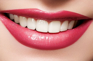 Hunt Valleny Cosmetic Dentistry, Cockeysville Teeth Whitening