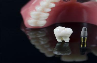 Lutherville Dentist, Dentist Cockeysville