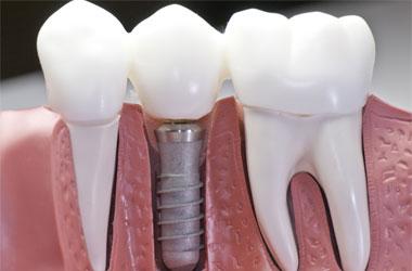 Cockeysville Dental Implants, Hunt Valley Periodontist