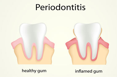 Cockeysville Periodontal Disease, Hunt Valley Gum Disease